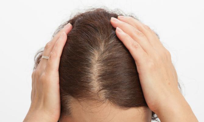 髪の毛の分け目はげって?一見気づきにくいはげの原因と対策を知ろう ...